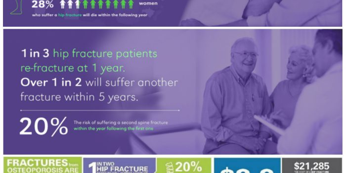 Fracture Facts